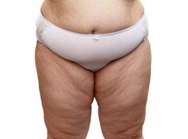 Como emagrecer pernas gordas