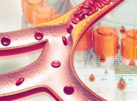 [Colesterol alto pode ser de família: alteração nos olhos, mãos e outros]