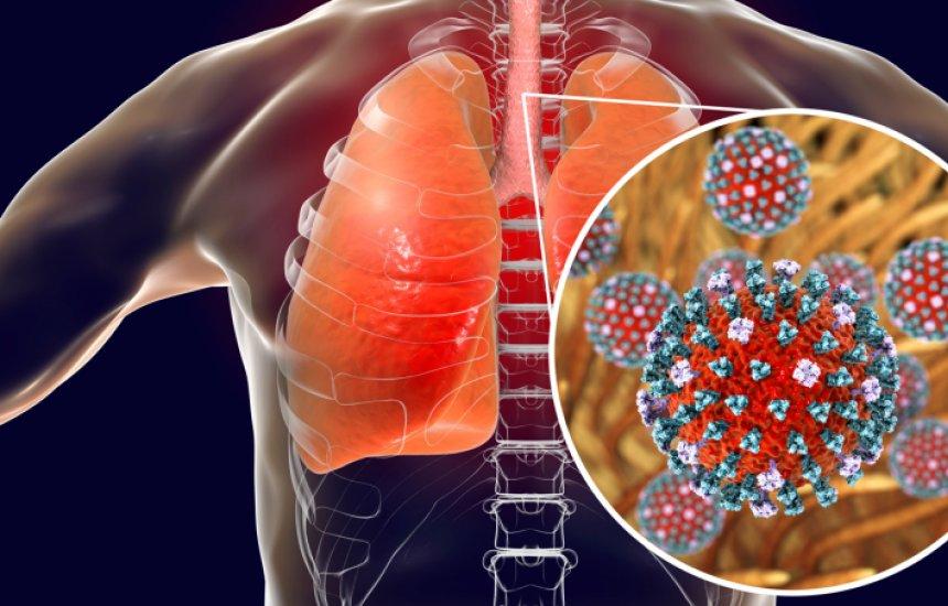 [Gripe H3N2: o que é, principais sintomas e como se proteger desse tipo de vírus]
