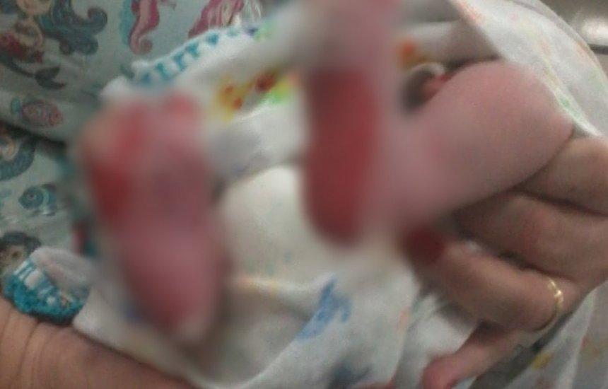 [Bebê de 15 dias tem queimaduras de 2º grau em hospital: 'vi fumaçando']