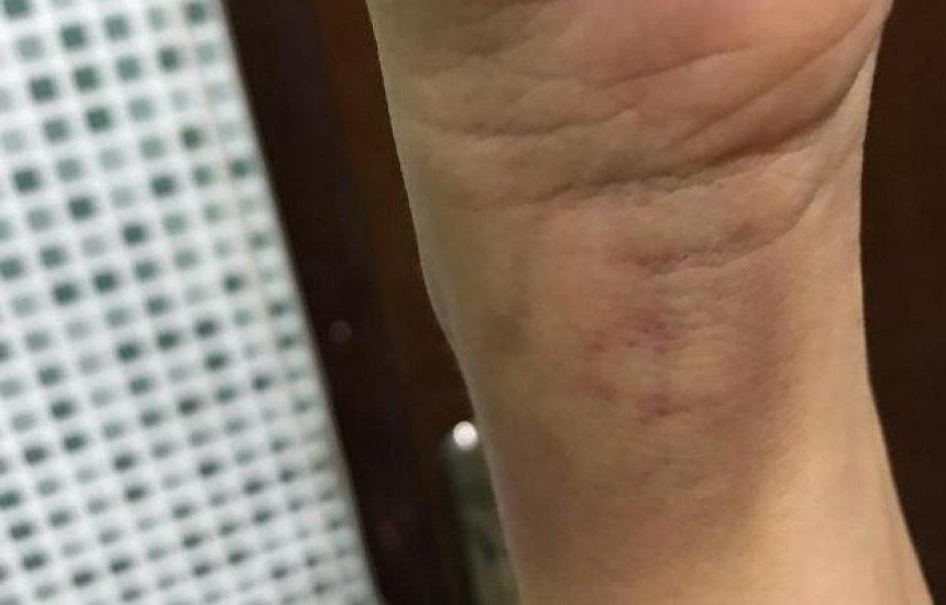 [Moradora sofre tentativa de assalto e é agredida por bandido no Alto da Cruz]