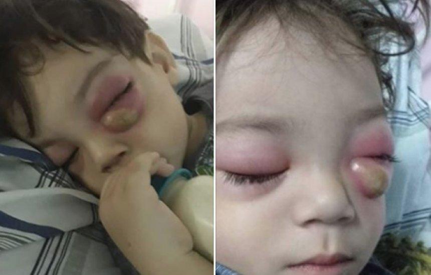 Criança contrai grave condição após sinusite e mãe faz alerta