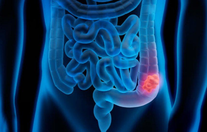 [Sedentarismo pode provocar câncer colorretal, um dos tumores mais comuns]
