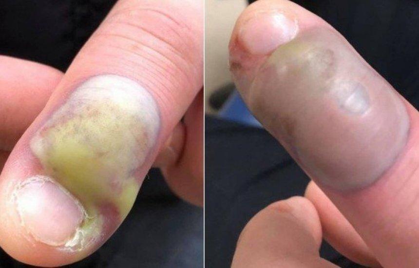 [Paciente é operado de emergência após infecção por roer as unhas]