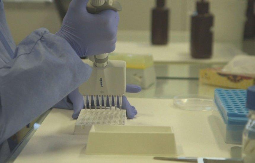 [Brasil tem 77 mortes e 2.915 casos confirmados de novo coronavírus, diz Ministério da Saúde]