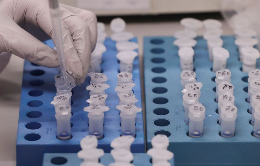Número de casos de coronavírus na Bahia passam de 110 mil