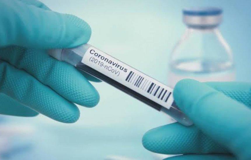 [Número de casos ativos de coronavírus é de 62 em Camaçari]