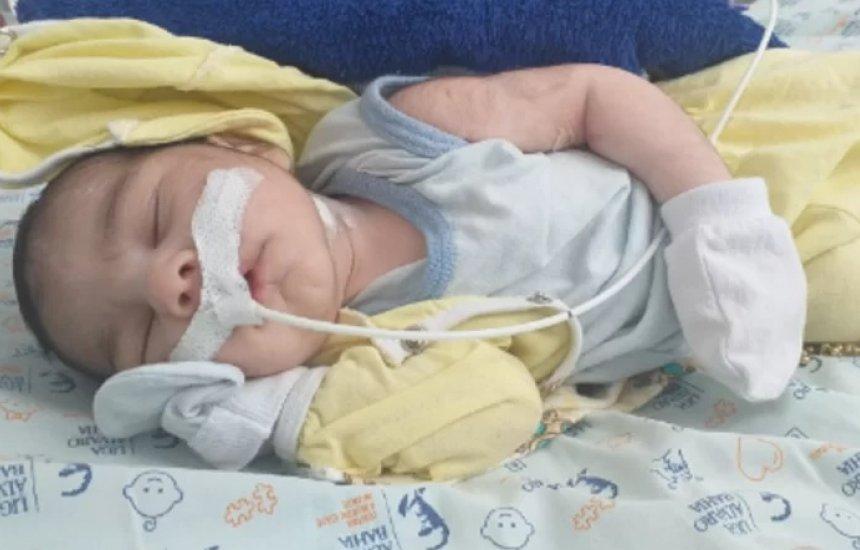[Camaçari: mãe realiza vaquinha virtual para custear tratamento do filho que tem doença rara]